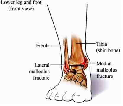 Broken ankle anatomy picture