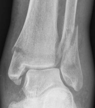 Broken ankle x ray