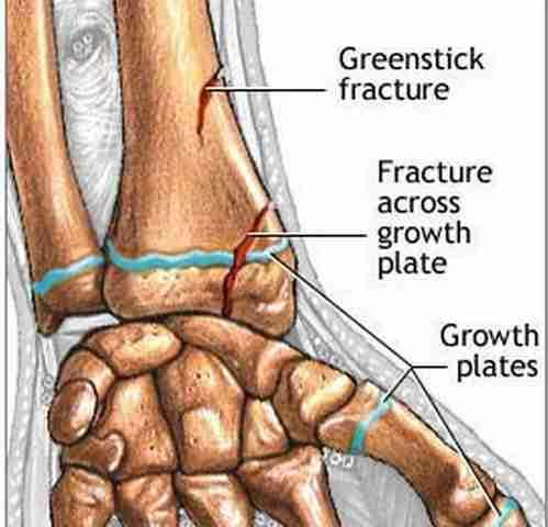 Greenstick fracture of radius (wrist)