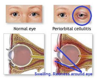 Periorbital Cellulitis eye normal eye pictures