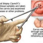 cervix biopsy with speculum with patient in lithotomy patient