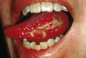 mucositis picture showing redness, swelling, ulcer of mucus membrane