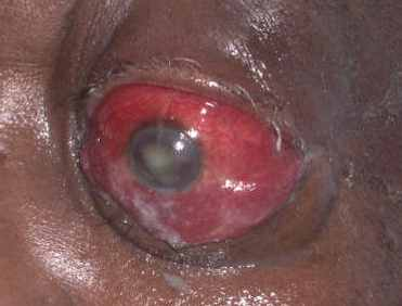 severe condition of periorbital cellulitis