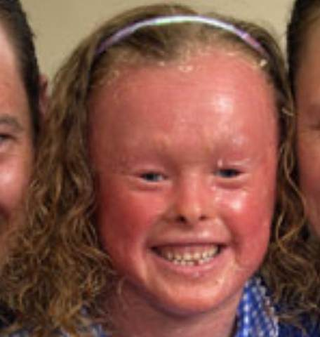 Harlequin Ichthyosis face pictures