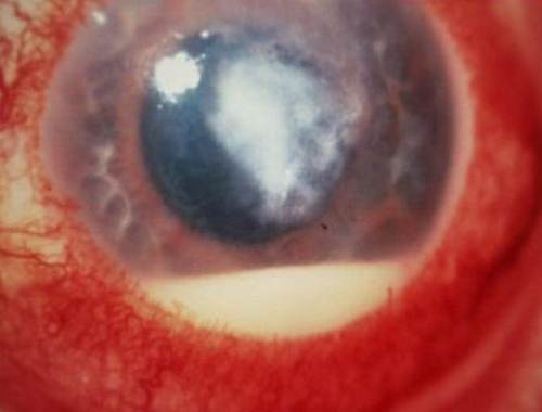 Corneal Ulcer pictures 5