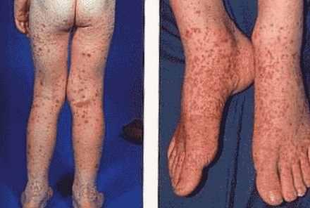 Henoch-Schonlein Purpura on legs, buttocks and thighs