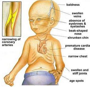 Progeria Symptoms