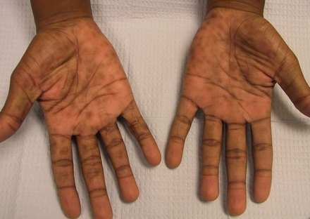 Prurigo Nodularis hands