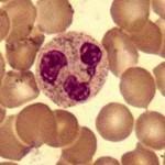 Granulocytopenia Picture