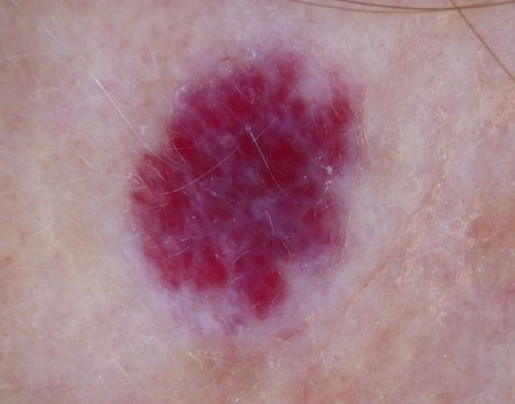 cherry angioma - pictures, removal, causes, home treatment, Skeleton