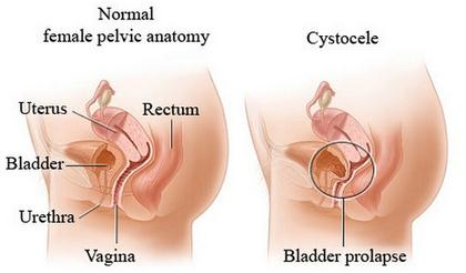 Prolapsed Bladder cystocele