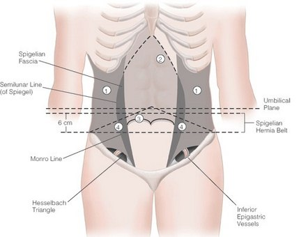 Spigelian Hernia anatomy and location
