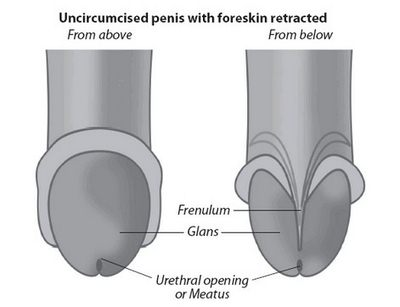 Tight Foreskin diagram