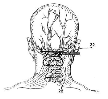 Peripheral Nerve Stimulation Image