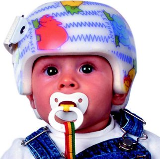Baby Helmet Image