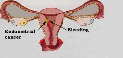 EarlyEndometrialCancer 1