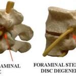 Forminal Stenosis