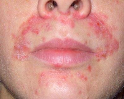 Perioral Dermatitis Image