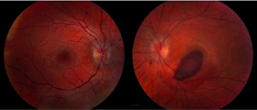 Optic disk edema image
