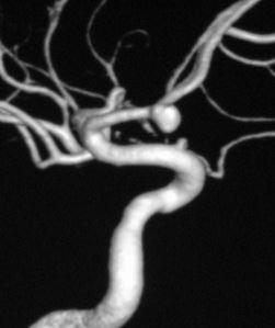 berry aneurysm photo