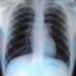 chest congestion x ray
