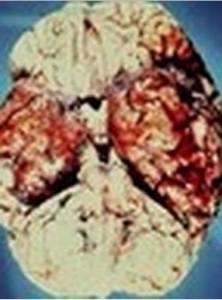 Pics of Herpes Encephalitis