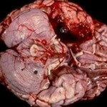 Herpes Encephalitis Pic