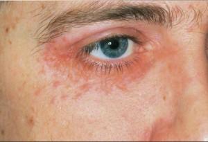 Perioccular Dermatitis pics