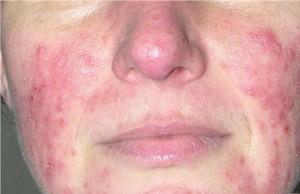 Periorificial dermatitis image
