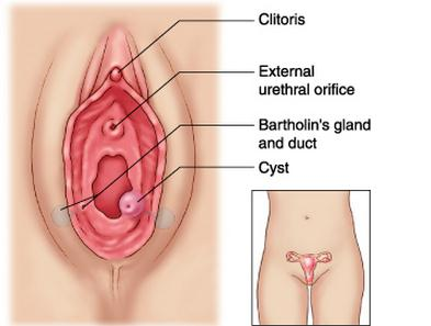 Bartholin Cyst picture