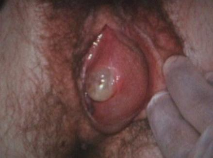 Left Bartholin Cyst Abcess