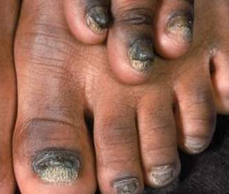 Onychomycosis fungal infection