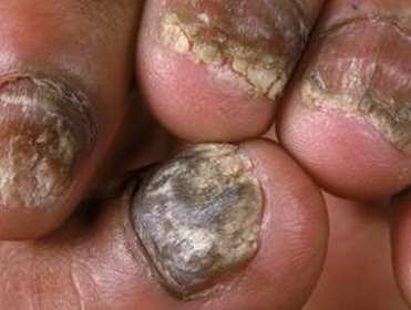 Onychomycosis pictures