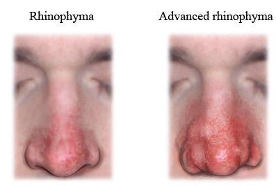 rhinophyma image