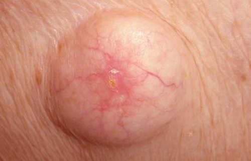 An image of an ingrown hair cyst.picture