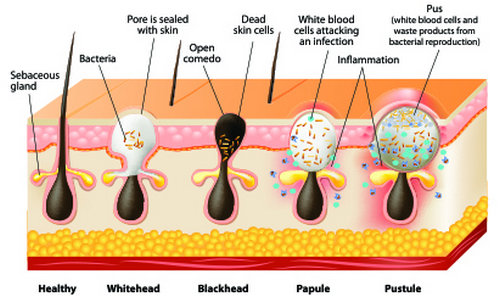 A hair follicle types of pimples.photo