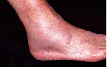 picture of Broken ankle showing swelling, redness