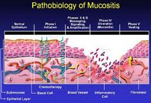 mucosistis pathobiology picture