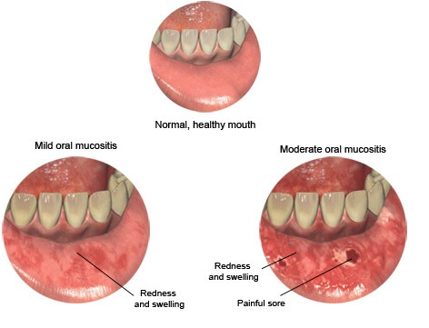mucositis picture - redness, swelling, sore of mucus memebrane