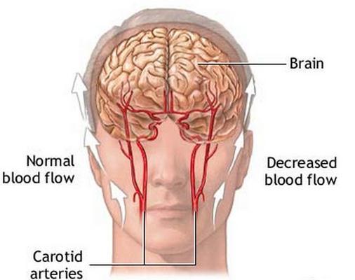 Ice Pick Headaches pathophysiology, brain image