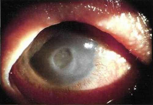 Corneal Ulcer pictures 1