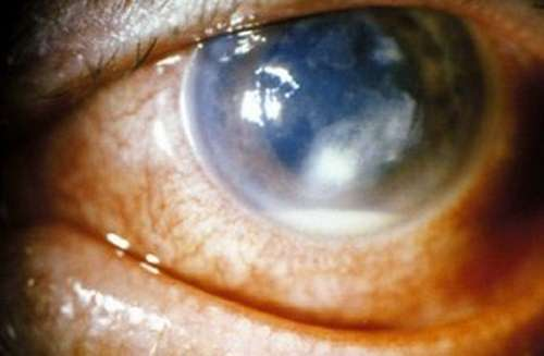 Corneal Ulcer pictures 3