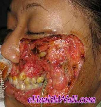 Flesh Eating Disease on face images