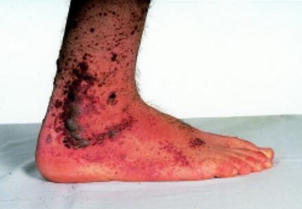 Henoch-Schonlein Purpura on legs (lateral view)