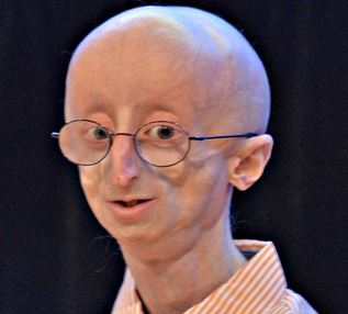 progeria syndrome picture