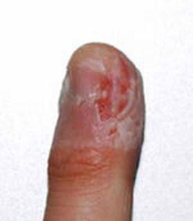 Dermatophagia pictures