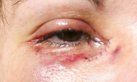 Blocked Tear Ducts external appearance image