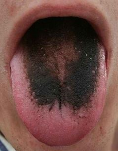 hairy tongue image