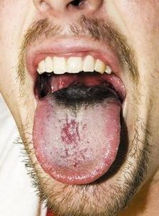 hairy tongue photo