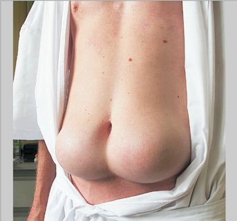 lipohypertrophy image